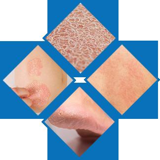 Najczęstsze choroby skóry